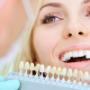 Know About Your Dental Implants